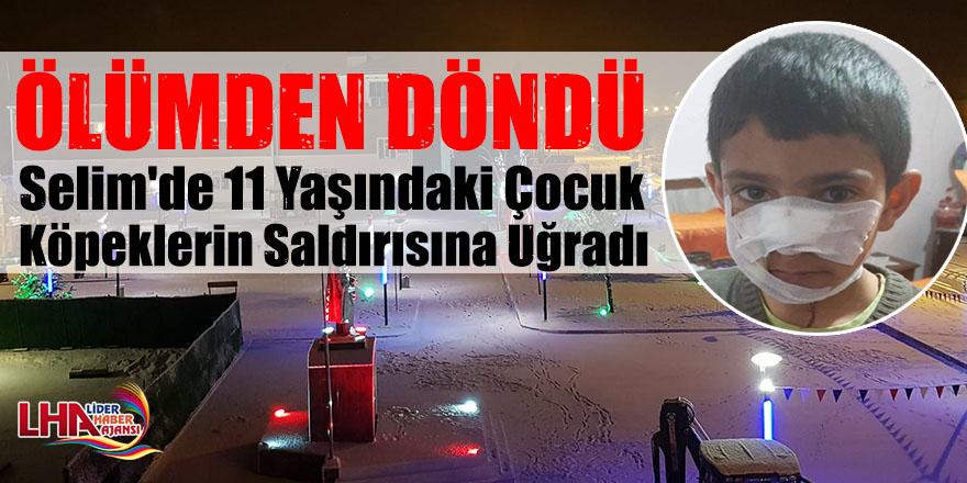 Selim'de 11 Yaşındaki Çocuk Köpeklerin Saldırısına Uğradı